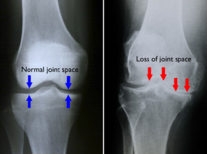 Thoracic, Arthritis Newsletter_old